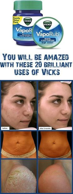 Remedies For Skin Vicks VapoRub is commonly used in the treatment of headaches, cold, cough, stuffy nose, throat and chest. We have some more good news for you. Vicks VapoRub is even more powerful than this. Home Remedies, Natural Remedies, Dry Feet Remedies, Health Remedies, Beauty Secrets, Beauty Hacks, Beauty Tips, Diy Beauty, Beauty Products