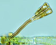 Leben im Teich: die Stielchen-Kieselalge Gomphonema sp) (Bacilliarophyceae)