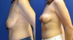 Breast Lift. www.plasticsurgerycyprus.com