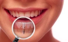 4 Top Benefits Of Dental Implants In Wakefield Dental Hygienist, Dental Care, Implants Dentaires, Affordable Dental Implants, Dental Facts, Dental Surgery, Dental Services, Clinique, Cosmetic Dentistry