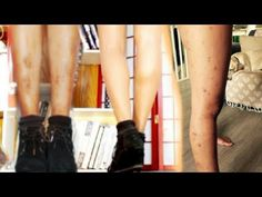 What do you do when the spots on your skin won't go away? In this video I talk about How to Get Perfect Legs in 1 minute (spots on skn). Dark Spots On Legs, Skin Spots, Perfect Legs, Skin Problems, Good Job, Hair Makeup, Cover Up, Skin Care, Wellness