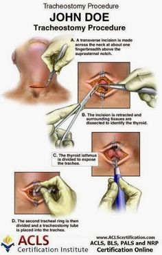 This procedure, technically called a cricothyroidotomy, should be undertaken only when a person with a throat obstruction is not able to breathe at all-no gasping sounds, no coughing-and only after you have attempted to perform the Heimlich maneuver three times without dislodging the obstruction.