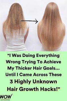 Hair Remedies For Growth, Hair Loss Remedies, Thinning Hair Remedies, Home Remedies, Natural Remedies, Make Hair Grow, Grow Longer Hair, How To Make Your Hair Grow Faster, Longer Hair Faster