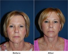 Procedures Performed: Endoscopic Brow Lift: Brow Lift Eyelid: Lower Lid Blepharoplasty with SOOF Deep Plane Minituck Laser Resurfacing: Eyes and Mouth Dr. Freeman's Makeovers Endoscopic Brow Lift, Co2 Laser Resurfacing, Eyelid Surgery, Brows, Eyes, Plane, Furniture, Eyebrows, Eye Brows