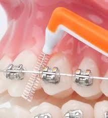 cepillo interdental en ortodoncia