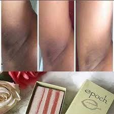 Galvanic Facial, Galvanic Spa, Nu Skin Reviews, Epoch, Acne Scars, Body Butter, Anti Aging Skin Care, Polish, Skin Care