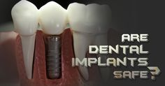 Are Dental Implants safe? Dental Implants are perfectly safe for anyone who has been deemed healthy enough for the Implant procedure. Bone graft helps to increase the candidacy in case if you don't have sufficient bone. Call our Oral Surgeon Today:  559-435-7993