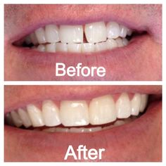 Tooth bonding to cover the gap between two teeth