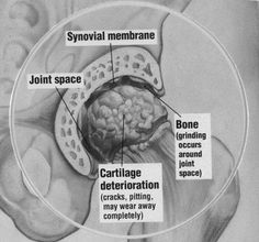 Osteoarthritis of the Hip (Hip Arthritis) Hip Arthritis Symptoms, Osteoarthritis Hip, Bursitis Hip, Rheumatoid Arthritis Treatment, Arthritis Relief, Hyaline Cartilage, Avascular Necrosis