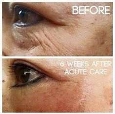 Our Acute Care Strips!! This is the real deal!!  I have 2 boxes I am giving away in month of August 2015!!! Contact me for more info!! drichardson2.myrandf.com