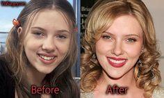 Scarlett Johansson Plastic Surgery, Before and After #scarlettjohansson #nosejob #boobjob #actress #beauty #beforeafter #rhinoplasty #hollywood #plasticsurgery