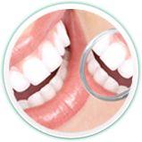 Pent smil med tannbleking
