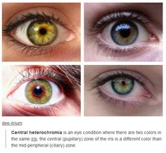 Central Heterochromia love this how I never figured this out about myself is odd but this is me!!<<<Mine start blue-ish on the outside, then get green-ish, finally ending in a hazel in the middle.