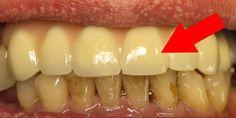Дедушка за 75 года ни разу не был у стоматолога… Он просто 3 раза в неделю применяет ЭТО средство!
