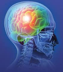 Find injury lawyer and personal injury lawyer zone. Los angeles personal injury lawyers and work injury lawyer. Charlotte Nc, Lesión Cerebral, Cerebral Cortex, Head Injury, Traumatic Brain Injury, Post Traumatic, Stress Disorders, Bipolar Disorder, Seizures