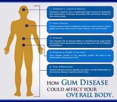 How gum disease could affect your overall body.  #GumDisease #PeriodontalDisease #Periodontist #Dentaltown