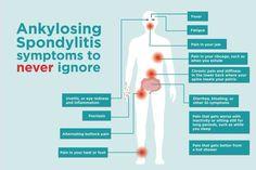 Ankylosing Spondylitis Exercise, Chronic Illness Quotes, Psoriatic Arthritis, Ulcerative Colitis, Nerve Pain, Chronic Pain, Fibromyalgia, Autoimmune Disease, Instagram