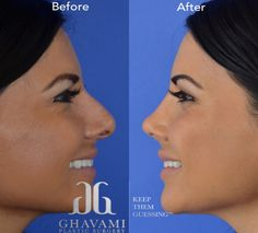 See before and after pictures of rhinoplasty patients treated by Beverly Hills' best nose surgeon, Dr. Botox Fillers, Lip Fillers, Beverly Hills, Face Care, Skin Care, Nose Surgery, Rhinoplasty Surgery, Nose Shapes, Cosmetic Procedures