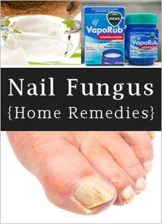 Home Remedies For Toenail Fungus