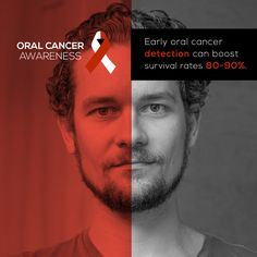 EARLY DETECTION IS CRUCIAL in dealing with oral cancer. Take charge, get screened! At Davis & Engert Dentistry, we do an oral cancer screening at every cleaning visit! It takes less than a minute! #parkridgedentist
