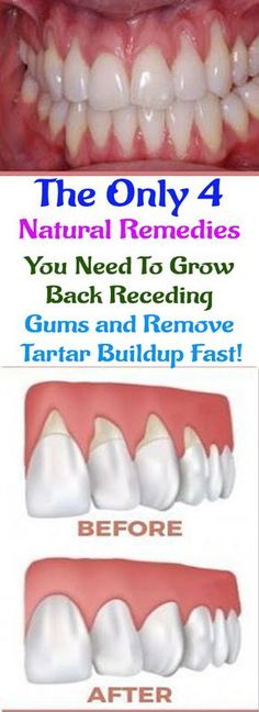 There are a lot of reasons why gums recede and it can become quite a health problem if this happens. If you are experiencing receding gums then you have found a great article to read. In thi…