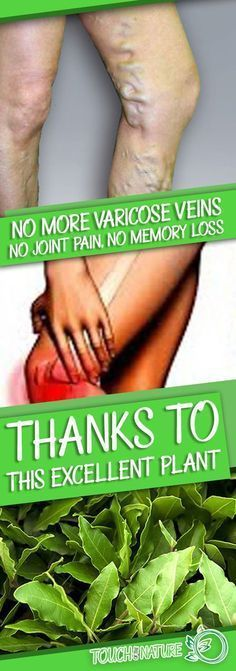 No More Varicose Veins, No Joint Pain, No Memory Loss, Or Headaches! Thanks To This Plant, Know it!! – Touch Of The Nature