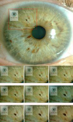 Caso práctico de Iridología de Reflejo Múltiple. Evolución de una pigmentación en el iris derecho de una mujer durante 10 años. #iridologia #iridología #iridology #iridologie © Javier Echavarren