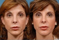Protandim and True Science use before and after 60 days. Only products that reduce oxidative stress by 40% fighting free radicals that cause aging and disease.