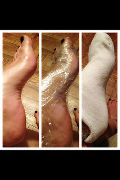 "Ok here's a little ""how to"" to keep your feet soft!   Step 1- exfoliate your feet best you can Step 2- apply thick lotion or Vaseline (I prefer Kerasal)  Step 3- take Saran Wrap an wrap your foot up!  Step 4- put a sock over the Saran Wrap  Step 5- chill for atleast 15mins  You want to use the Saran Wrap because that will lock the lotion to absorb on your skin rather then just using a sock, which with just a sock the cotton will soak up that lotion quicker then your skin can! #diy #beauty…"