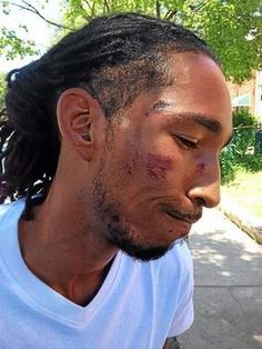 This Guy was Filming Cops Beat Up a Girl, So They Sicked their K-9 on Him  Beat Him -  7/8/14