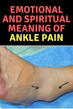 Many conditions affect the ankle including arthritis and gout and can cause pain and other problems. Emotional Meaning, Spiritual Meaning, Gout Relief, Pain Relief, Heal Broken Bones, Ankle Pain, Prayers For Healing, Healing Hands, Foot Pain