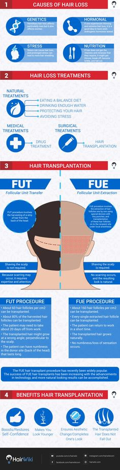 Causes of Hair Loss & Hair Loss Treatments Infographic