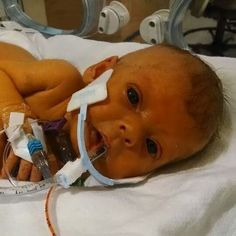 This little baby had been fighting in the children's hospital, before sadly passing away. The only thing the mother and father asked for, was pictures of her without her tubes, because they never saw her without them 😭 This made me cry