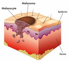 Although this deadliest form of skin cancer is more common in Caucasians, melanoma survival rates may be lower in darker-skinned individuals, a new study finds. Here, we describe melanoma's causes and symptoms along with treatment suggestions. http://universityhealthnews.com/daily/cancer/melanomas-can-affect-all-races/