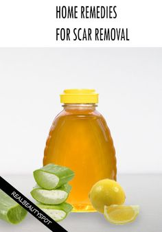 home remedies for scar removal : got a terrible burn a couple weeks ago and I don't want it to scar! Ugh, I hope these work.