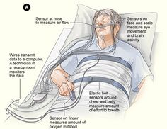 What is Apnea Index? How can you use this index to discover how severe is your sleep apnea syndrome?