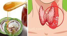 [ad]\r\n\r\nEsta bebida natural promueve el buen funcionamiento de la tiroides y al mismo tiempo te ayudará a perder peso.\r\n\r\n\r\n\r\nIngredientes:\r\n- 40 nueces verdes\r\n- 500g de miel orgánica\r\n\r\n[ad1]\r\n\r\nPreparación:\r\nLava las nueces y pínchalas con agujas esterilizadas. De lo contrario, puede cortar las nueces por la mitad. Deja secar durante unos minutos y ponerlos en un frasco de vidrio, luego agrega la miel orgánica. Deja reposar la mezcla durante 3 semanas. Al cabo de…