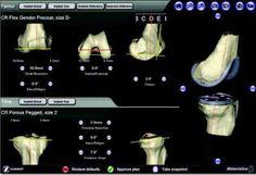 Ορθοπαιδικά θέματα για όλους: Η πιο εξελιγμένη μέθοδος Αρθροπλαστικής γόνατος