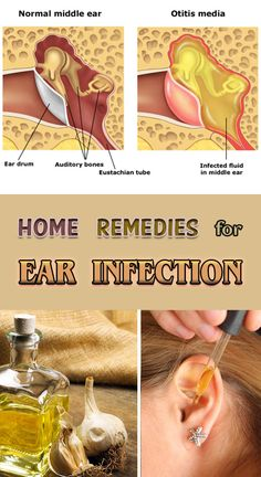 Home Remedies for Ear Infection Natural Health Remedies, Herbal Remedies, Earache Remedies, Ear Drainage, Ear Infection Home Remedies, Ear Pain Remedies, Ear Infection Symptoms, Home Remedies, Health