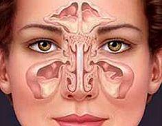 Cómo tratar la sinusitis de manera natural