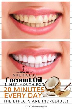 Coconut Oil Uses - Swish coconut oil in your mouth before brushing teeth to whiten them naturally. 9 Reasons to Use Coconut Oil Daily Coconut Oil Will Set You Free — and Improve Your Health!Coconut Oil Fuels Your Metabolism! Coconut Oil Hair Treatment, Coconut Oil Hair Growth, Coconut Oil Beauty, Coconut Oil For Teeth, Natural Coconut Oil, Coconut Oil Pulling, Coconut Oil Hair Mask, Benefits Of Coconut Oil, Organic Coconut Oil