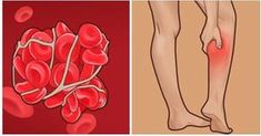 According to MedicineNet, blood clots form inside veins or arteries as part of the body's effort to repair damage to a blood vessel. But if a clot, which is a gelled mass made of blood platelets and fibrin. Natural Health Remedies, Home Remedies, Natural Cures, Health And Wellness, Health Tips, Health Benefits, Blood Pressure Remedies, Warning Signs, Heart Health