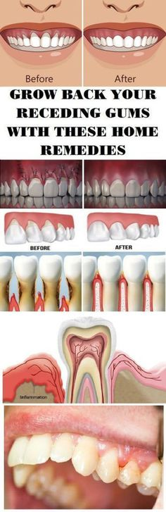 Grow back your receding gums with these home remedies – Higher Life