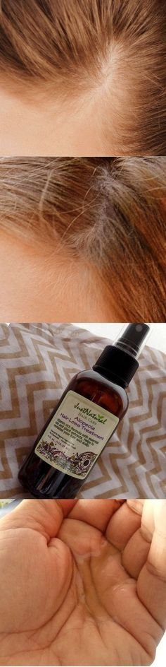 Alopecia Hair Loss Treatment http://www.hairgrowinggenius.com/ #hairlossremedy #regrowhair