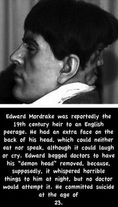 "Spent his short life in isolation. ""Another interesting but highly implausible thing was the fact that the face seemed to be speaking, but nothing could be heard. However, Edward could hear what it was saying and he begged the doctors to remove the face from his head because it talked to him forever about ""things from hell"". But the surgeons refused to remove it because it was too risky.""  ~K~ no wonder he lived in seclusion."