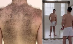 Number of men seeking laser hair removal treatments rises 86%