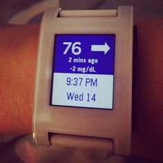CGM in the Cloud / Pebble Watch /Dexcom G4 #wearenotwaiting Type 1 Diabetes monitoring blood glucose from a distance.