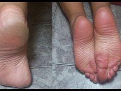 Existem diferentes causas que provocam as rachaduras nos calcanhares. Às vezes é devido às condições de saúde, outras vezes, ao uso constante de sapatos abertos, como por exemplo, as sandálias. Essa receita caseira elimina as rachadura dos pés.  G