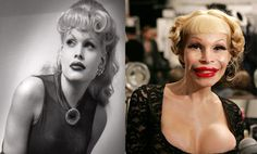 Celebrities Who Had The Worst Luck In Cosmetic Surgery   It Thing!