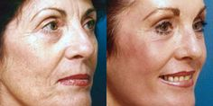Laser Resurfacing Before and After Photos